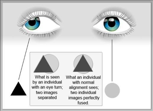 NVDC - Amblyopia diagram