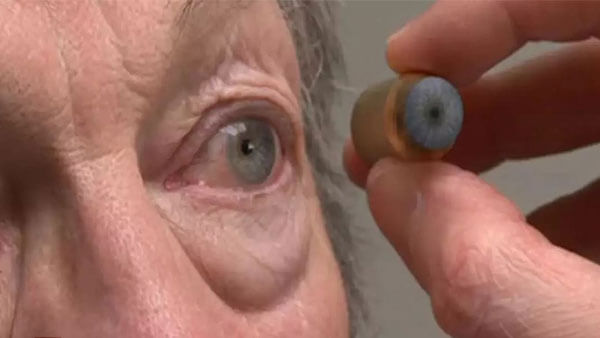 Image of ocularist matching eye color for patient being fitted for artificial eye