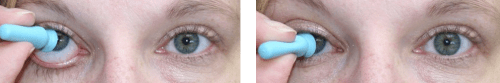 prosthetic eye insert suction cup