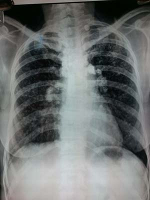 X-ray showing the effects of silicosis: a profusion of scar tissue in the lungs, brought about by chronic inhalation of crystalline silica.