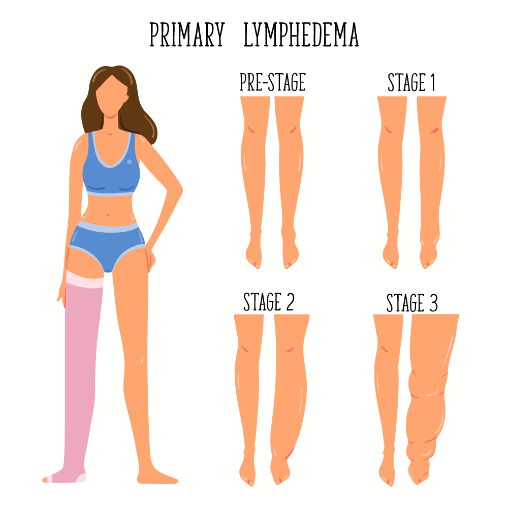What Is Lymphedema Northwest Lymphedema Center