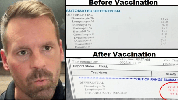 """""""My Jaw DROPPED"""": Blood Tests Before & After Covid Jab Prove Shot OBLITERATES Immune System, Doctor Claims Image-522"""