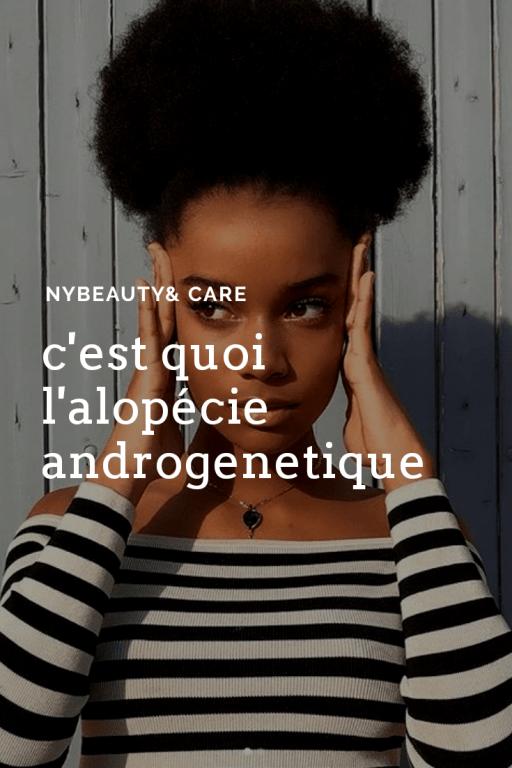 comprendre l'alopecie androgenetique
