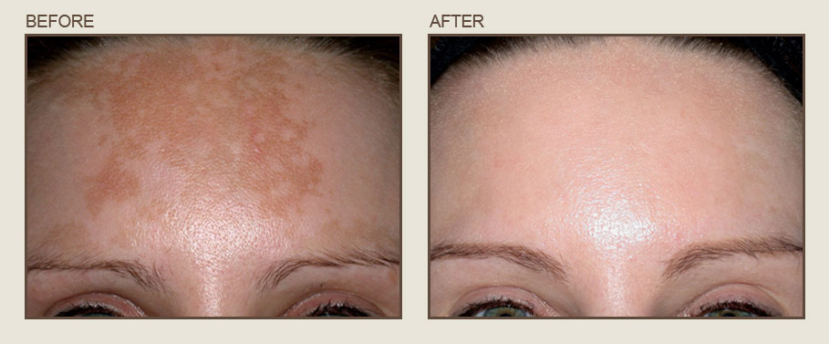 Freckle removal NYC