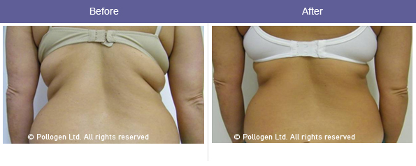 Before and after fat reduction skin tightening