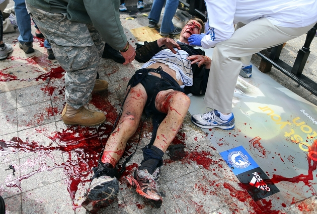 Photos of the Boston Marathon Bombing (VERY GRAPHIC - DISCRETION ADVISED) (5/6)