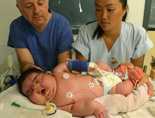 Did anna baby why died bates Heaviest birth