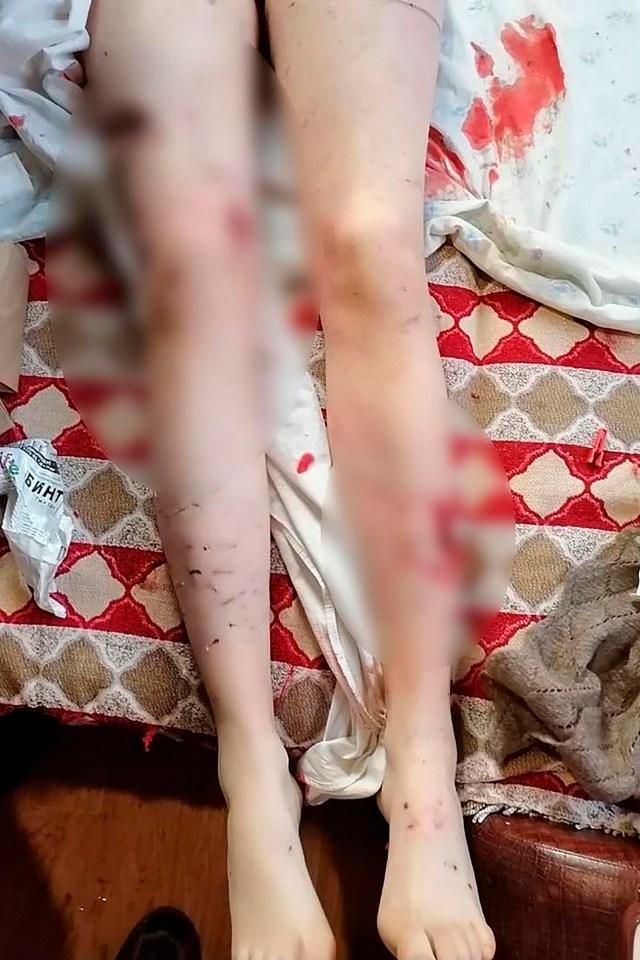 Ulan-Ude dogs attack