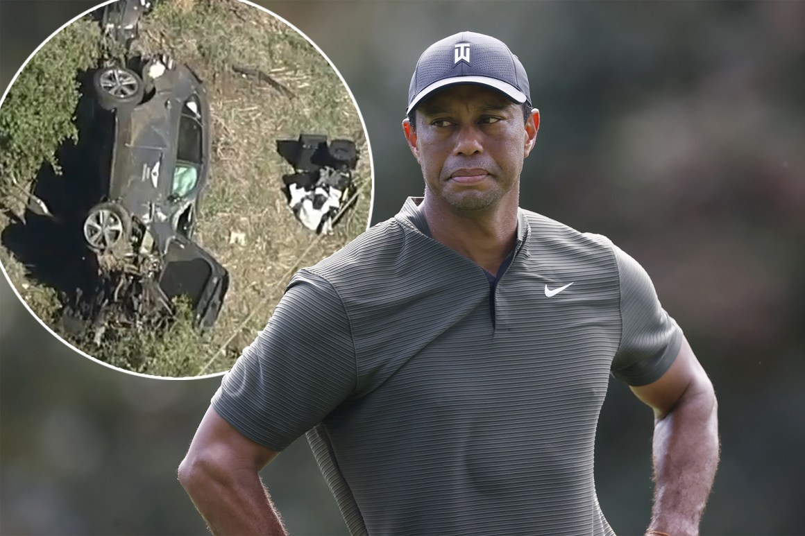 Tiger Woods in surgery after California car accident, suffers major  injuries to legs