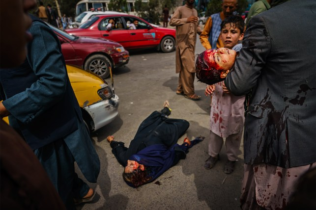 A boy carries a blood-soaked child while a woman is lying injured on the road as Taliban fighters use guns, whips, sticks and sharp objects to control the crowd of thousands of Afghans who Waiting outside Kabul Airport.