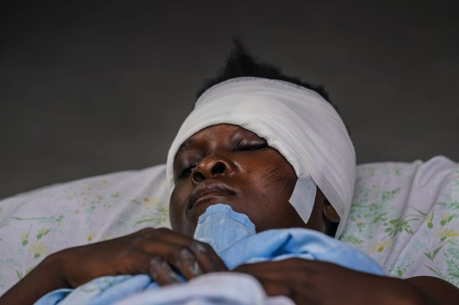 On Monday, August 16, 2021, two days after a 7.2 magnitude earthquake shook the southwestern part of the country, an injured child lay in bed at the Immaculi Conception Hospital in Les Keys, Haiti.