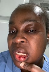 Landlord Kennisha Gilbert said her tenant — identified by cops as 26-year-old Ravon Service — assaulted her and her husband.