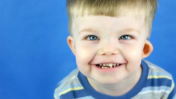 """Слика 1. Детенце со Williams-Beuren синдром. ваквите луѓе имаат изразено """"пријателско"""" лице и однесување. За жал, синдромот предизвикува и срцеви проблеми, потешкотии при исхранување како и задоцнување во развојот. (ПРАВА: raisingchildren.net.au)"""