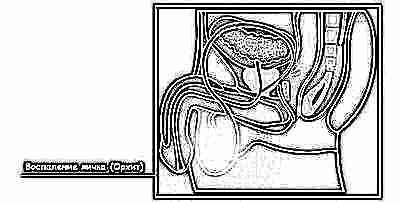 Prostatitis távollét)
