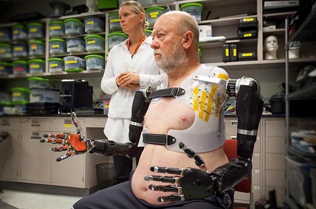 Il doppio amputato controlla due armi robot con la sua mente
