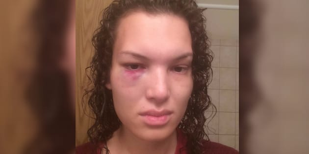 Aisha Walker says she was left with a black eye and seven shattered teeth after being punched by a stranger on Winnipeg bus on Saturday.