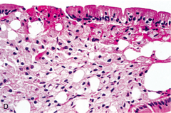 Rapid Review Pathology: Chapter 18, Gastrointestinal ...