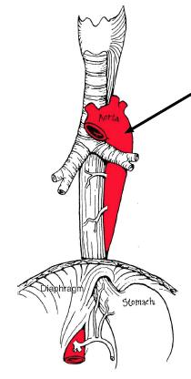 anatomy Superior and Posterior Mediastinum test 1 ...