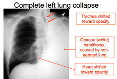 Respiratory System Session 8 Basic Chest Radiology