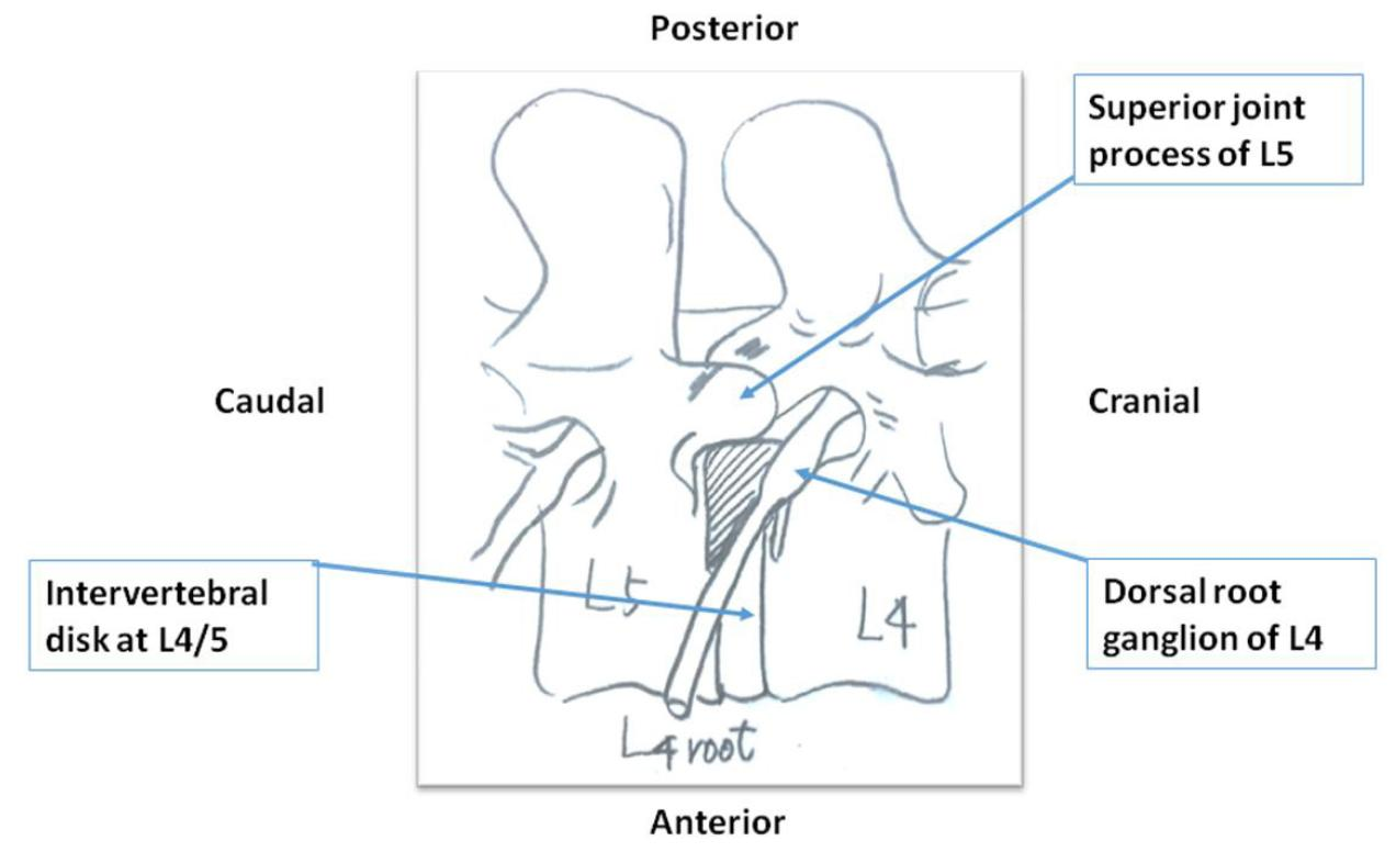 Anatomical Relationship Between Kambin S Triangle And Exiting Nerve Root