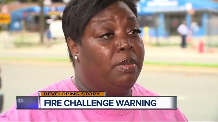 Mom Of Fire Challenge Video Burn Victim