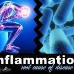 inflammation root cause of disease
