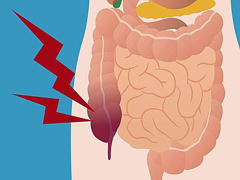 Penyakit Usus Buntu – Gejala, Penyebab, Obat, Pencegahan