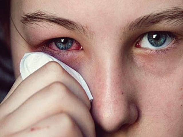 5 Obat Mata Merah dan Gatal – Sebelah, Bengkak, Belekan