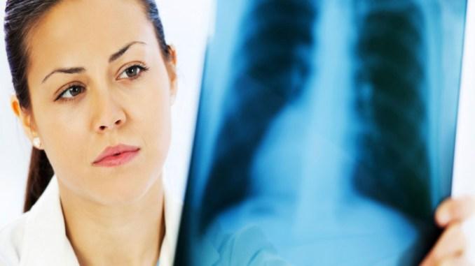 Pemeriksaan paru pada pasien TB