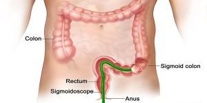 Cara mengatasi rektum atau poros usus secara alami