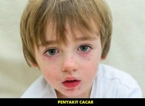 Pengobatan Penyakit Cacar Air pada Anak