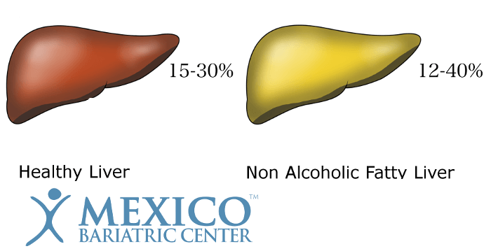 Healthy Liver vs Non Alcoholic Fatty Liver