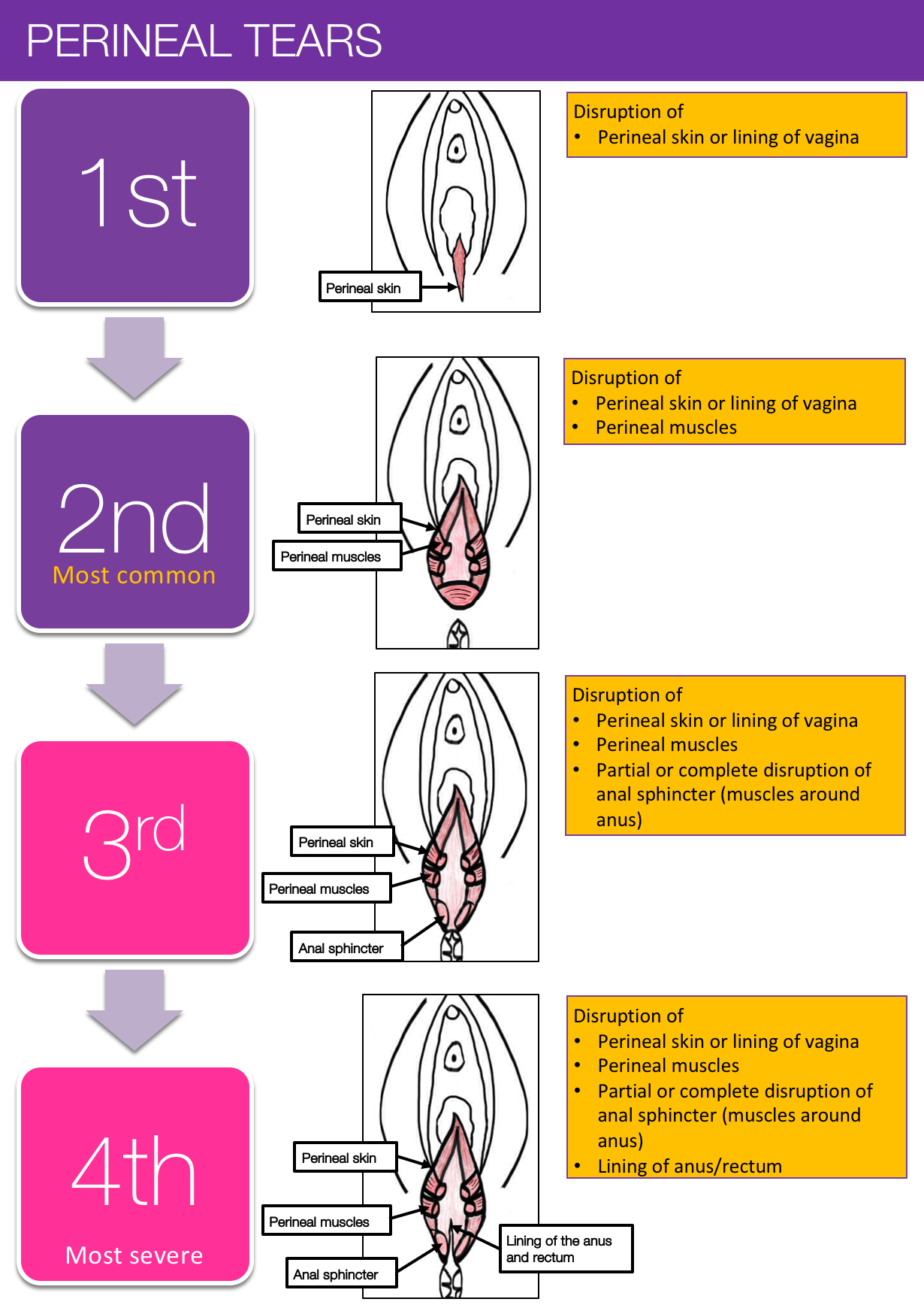 Sex after 3rd degree tear