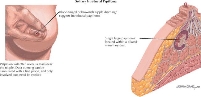 Intraductal papillomas causes - Papilloma causes