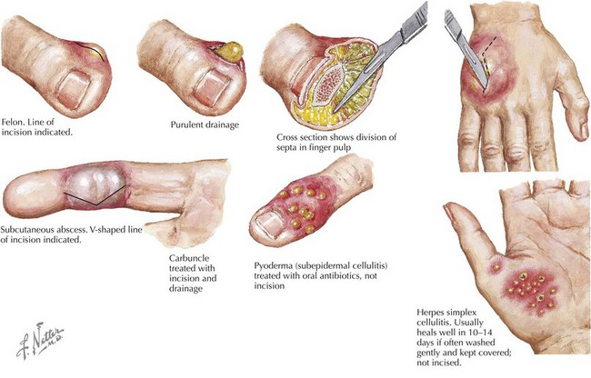 Skin and Soft Tissue Infections | Obgyn Key