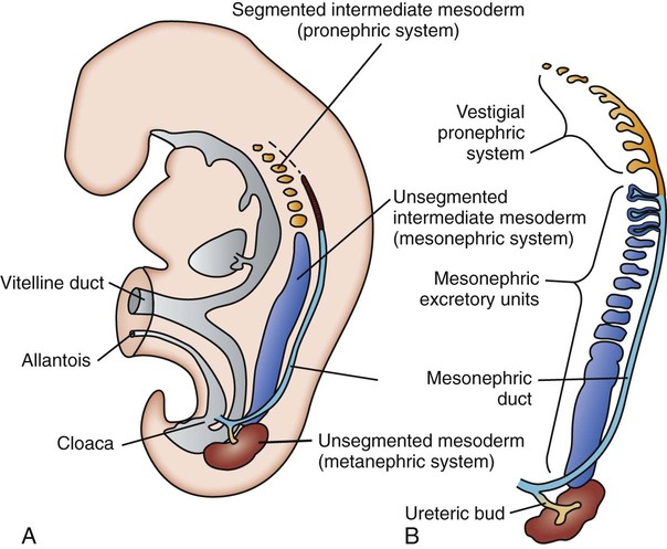 The Kidney and Urinary Tract of the Neonate | Obgyn Key