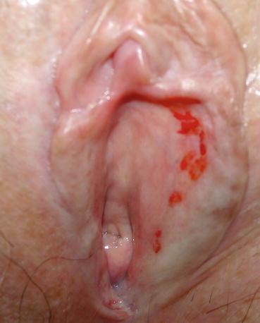 Pain in and around my vagina share