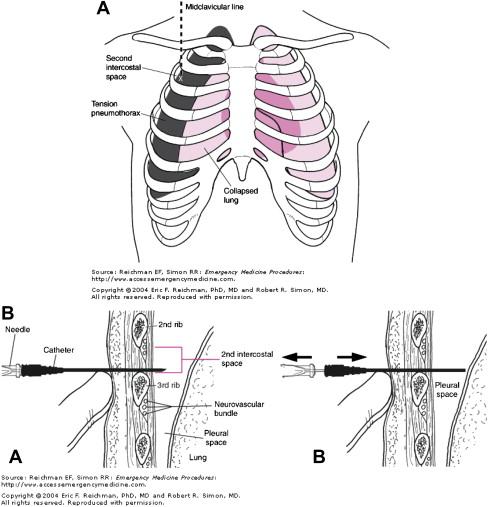 Pneumothorax, Pneumomediastinum, and Pulmonary Embolism