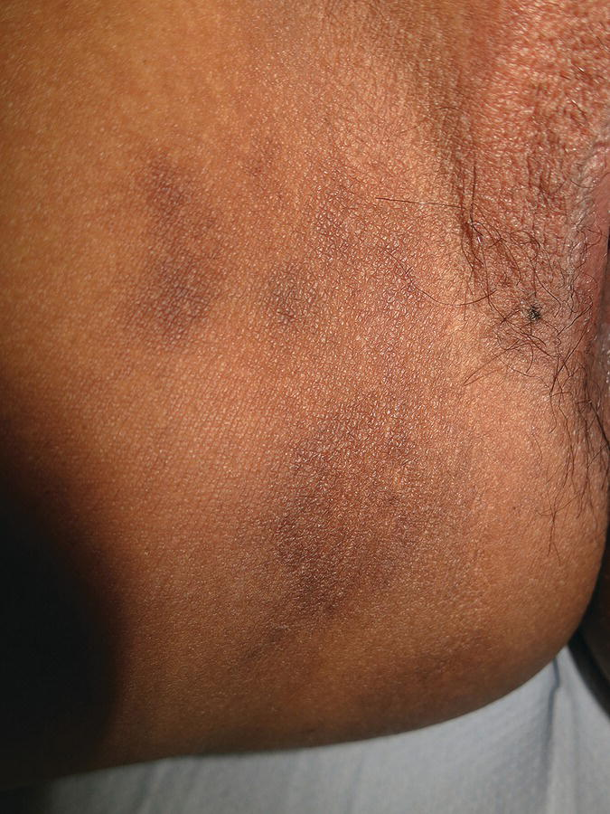 Photo displaying the area around the vulva with post-inflammatory hyperpigmentation after eczema.