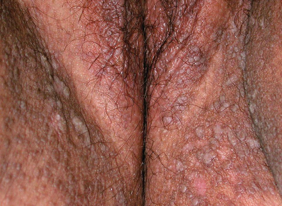 Photo displaying a vulva with Hailey-Hailey disease (pruritic papules on labium majus.