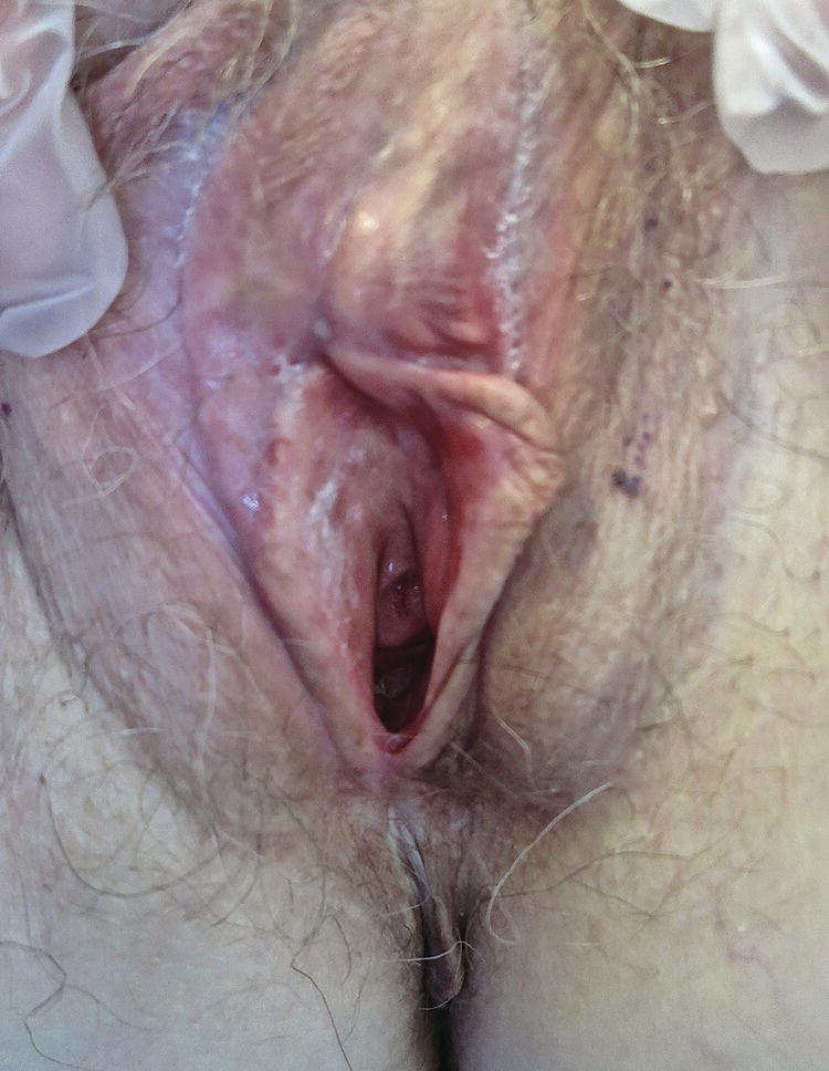 Photo displaying vulva with mucous membrane pemphigoid with scarring and erosions.