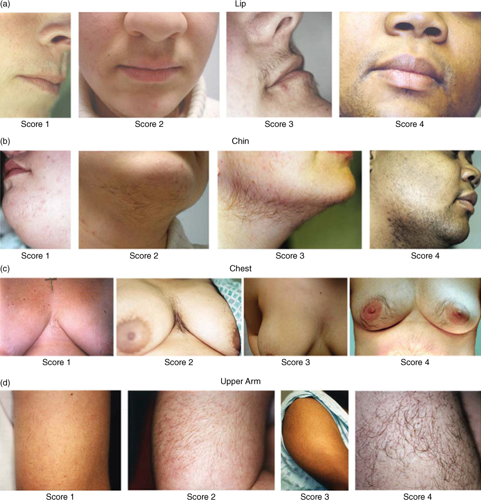 Photographs depicting terminal hair growth in the chin, upper lip, mid-abdomen, and upper/medial aspects of thigh, scored according to the modified FG method.