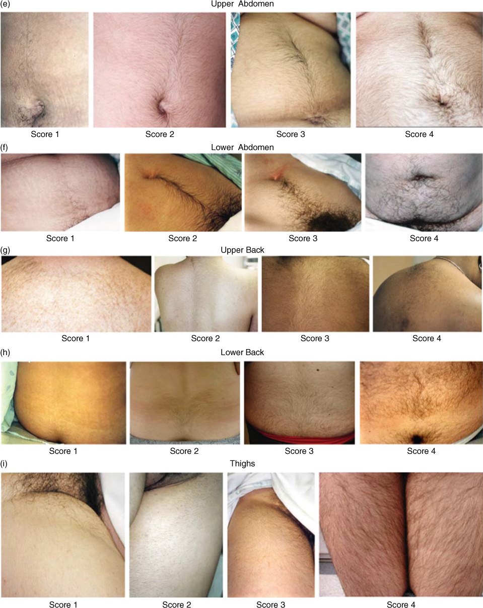 Photographs depicting terminal hair growth in the upper abdomen, lower abdomen, upper back, lower back, and thighs, scored according to the modified FG method.
