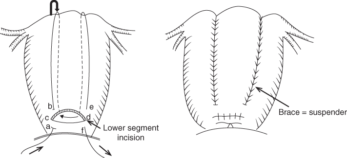 2 Diagrams of B-Lynch uterine compression suture indicating lower segment incision with areas marked by a, b, c, d, e, and f having inward and outward arrows (left) and brace = suspender (right).