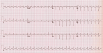 29 – Pneumonia and Respiratory Failure in a Pregnant Woman