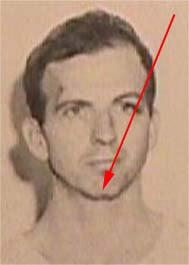 JFK Ass Oswald chin