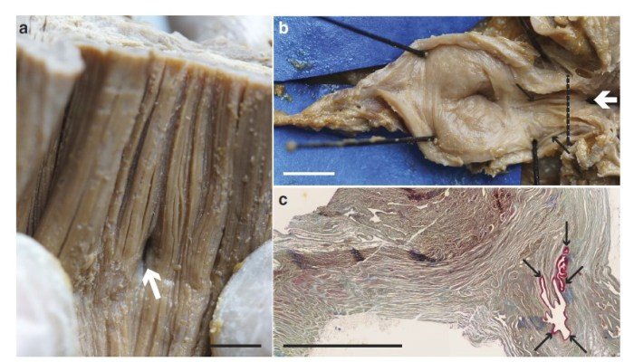 Fig. 3. The vestigial lung of an adult coelacanth, fished in 1953. (a) The inside of the esophagus, with the opening leading to the pulmonary complex indicated (white arrow). (b) The inside of the vestigial lung, with the opening (white arrow) and wrinkles on the internal wall (black arrows) indicated. (c) Stained microscope image of the area indicated by the dashed black lines in (b), with the wrinkles again indicated (black arrows). Scale bar is 0.5 cm. Adapted from Cupello et al., 2015.