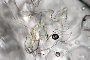 Fig. 4: Microscopic phytoplankton contribute to the ice algae community. Here they can bee seen growing in the spaces between the ice (Photo: Live Science).