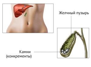 Желчнокаменная болезнь: возможно ли лечение без операции?