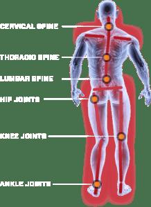 opedix-knee-tec-2-8
